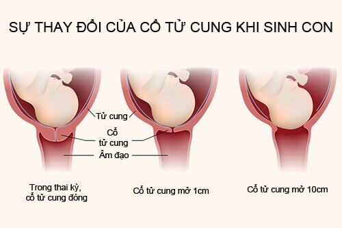 Cổ tử cung mở bao giờ sinh và lời giải đáp chính xác từ chuyên gia